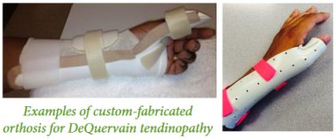 Custom Made Hand Splints That Hand Therapists Make For