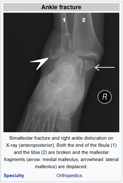 ankle fracture physiotherapy