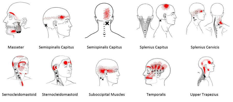 Cervicogenic Tension Headaches Physiotherapy