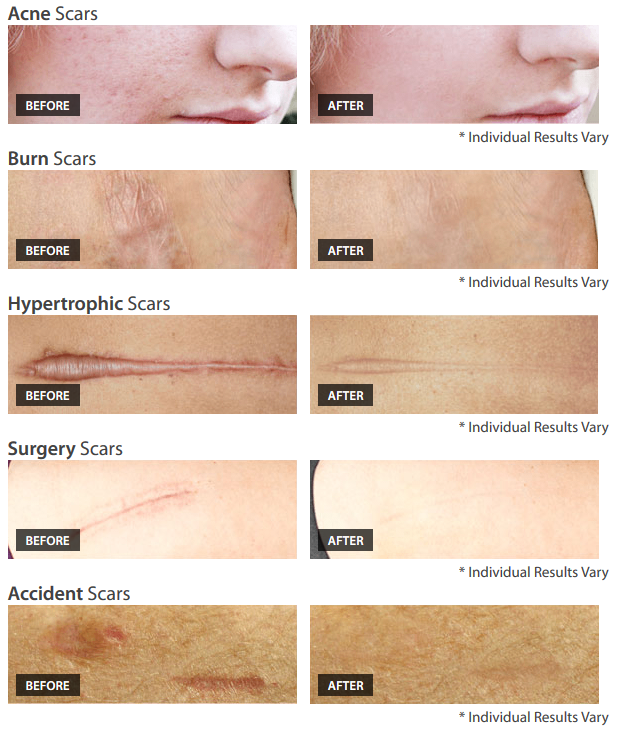 What Is A Scar Treatment Cream