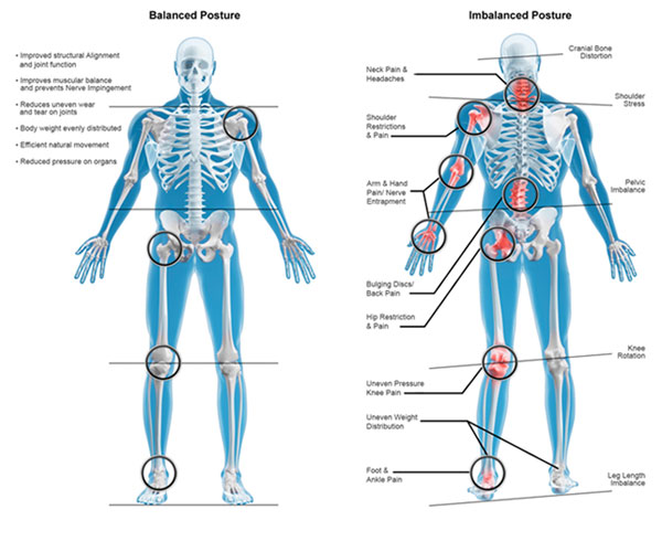 Structural Imbalance Physiotherapy